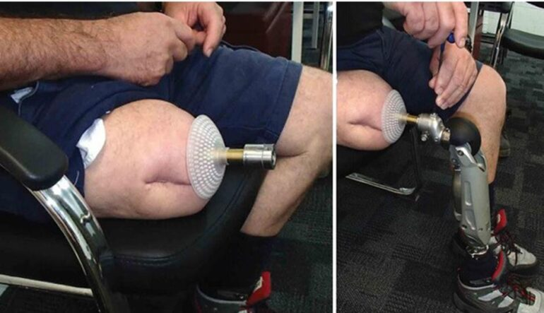 جراحی کاشت پای مصنوعی ایران مدتور