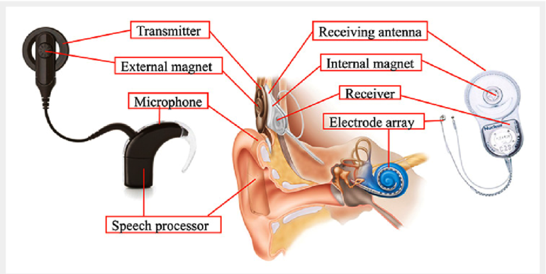 Cochlear Implant (CI) surgery in Iran