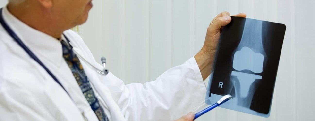 تعویض مفصل زانو درایران