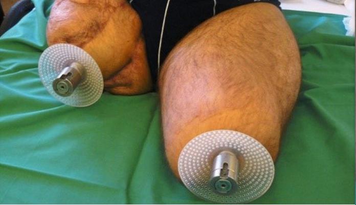 توانبخشی بعد از کاشت ایمپلنت درون استخوانی