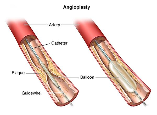 Angioplasty (stent placement) in Iran