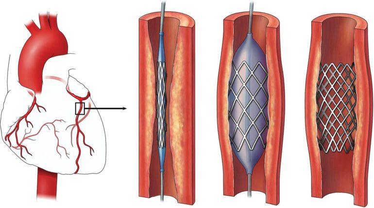 Heart angioplasty