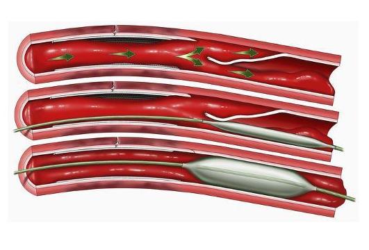 سری عروق کرونر مسدود شده با ترمیم آنژیوپلاستی بالون