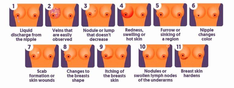 جراحة سرطان الثدي في ایران