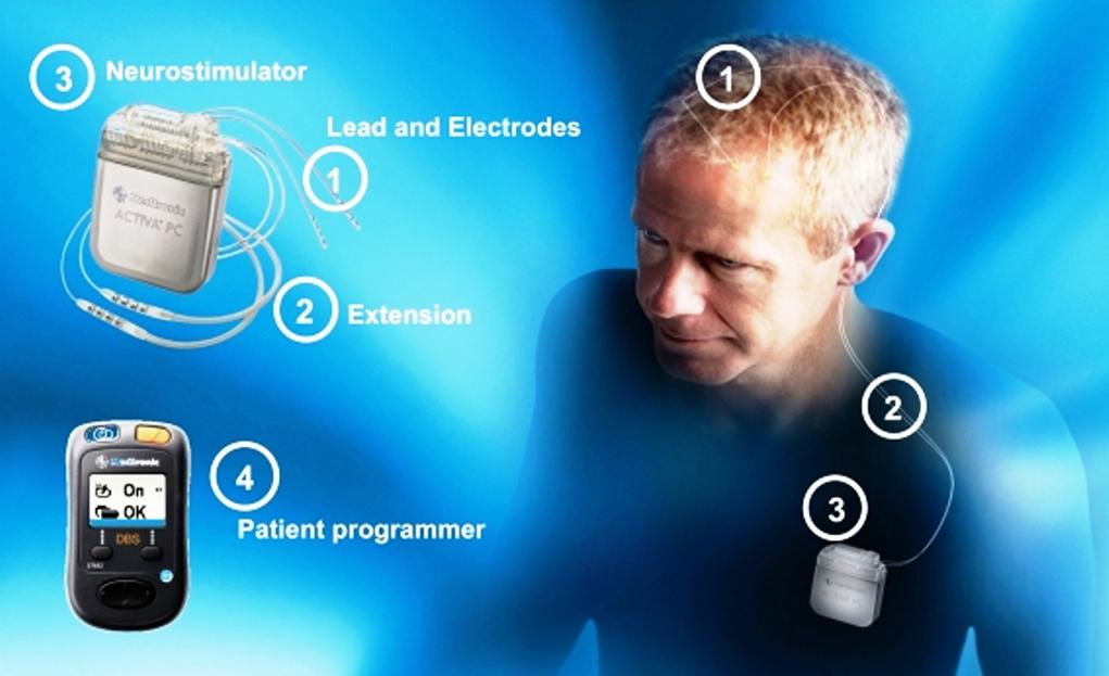 Deep brain stimulator (DBS) implant surgery in Iran