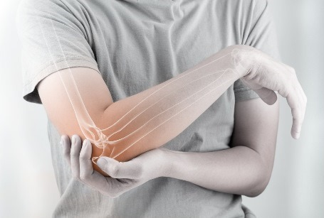 Elbow Joint Replacement (elbow arthroplasty) in Iran
