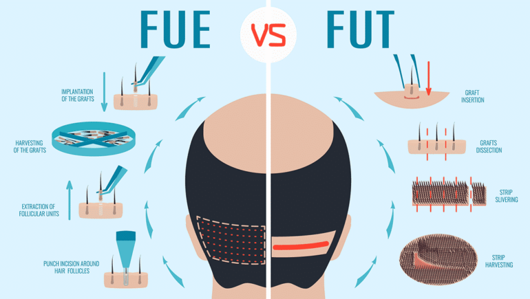 What hair on the head is used for hair implant?