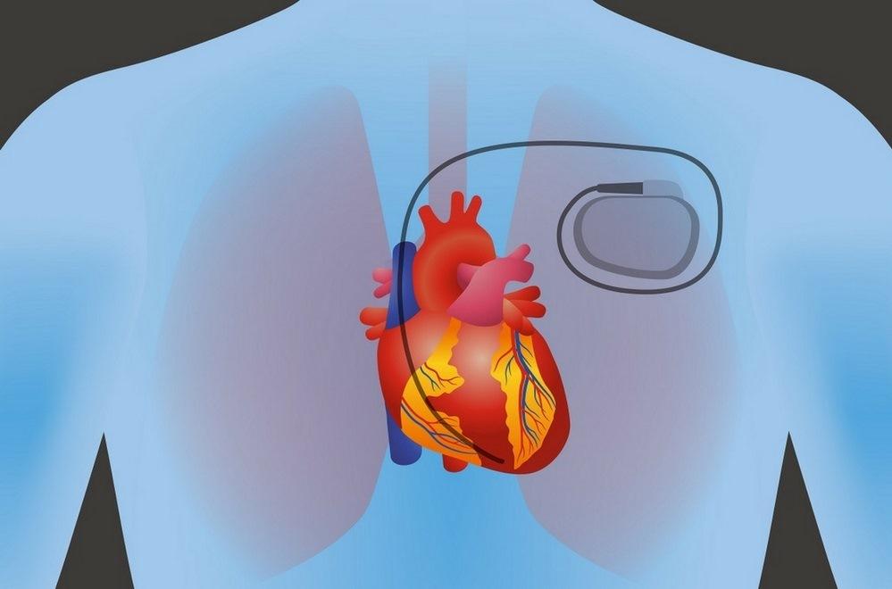کاشت پیس میکر قلب چیست؟