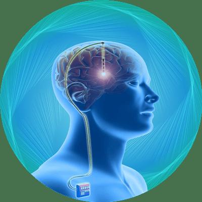پکیج تحریک عمقی مغز