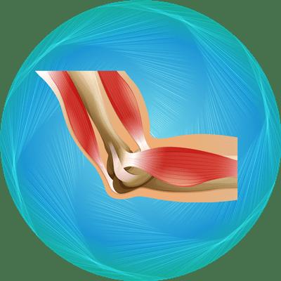 پکیج تعویض مفصل آرنج