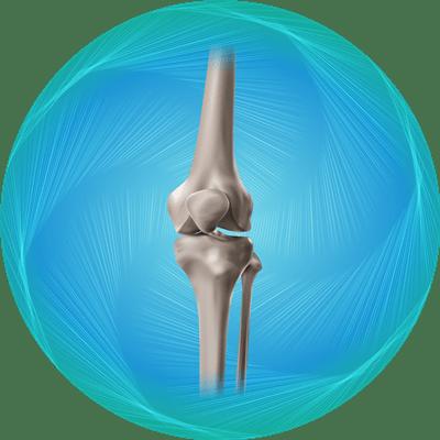 پکیج تعویض مفصل زانو