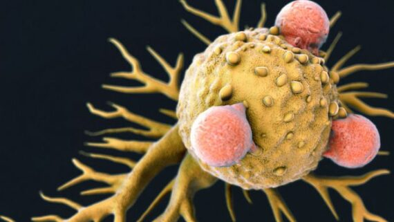 Killer T-Cell Discovery Could Mean 'Universal' Cancer Treatment