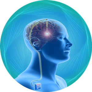 Deep Brain Stimulator package