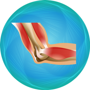Elbow Replacement Package
