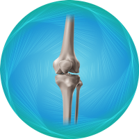 Knee Replacement Package