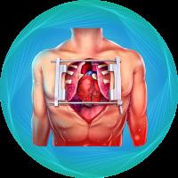 open heart surgery (1)