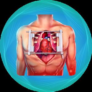open-heart-surgery-en